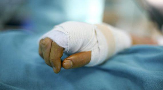פגיעה ביד