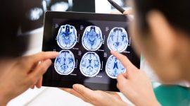 דימות מוח