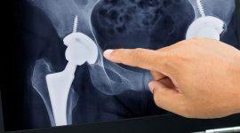 ניתוח החלפת מפרק